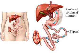 Duodenal-switch4