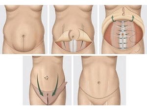 rbk-tummy-tuck-illustration-1-0411-mdn