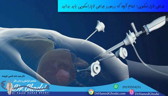 عمل جراحی لاپاراسکوپی