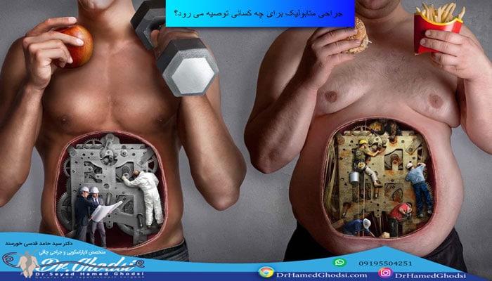نقاط قوت جراحی چاقی و متابولیک
