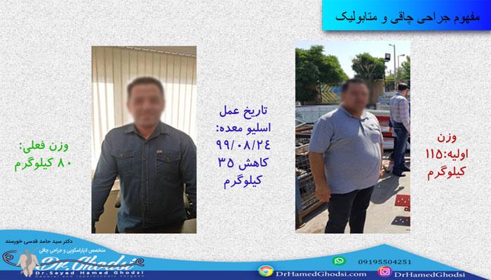 نتایج حاصل از جراحی چاقی و متابولیک