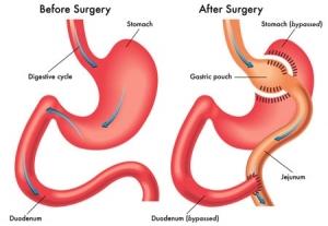 جراحی مینی بای پس نوعی جراحی متابولیک