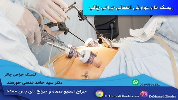 جراحی لاپاراسکوپی چاقی