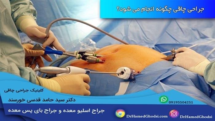 جراحی لاپراسکوپیک چاقی