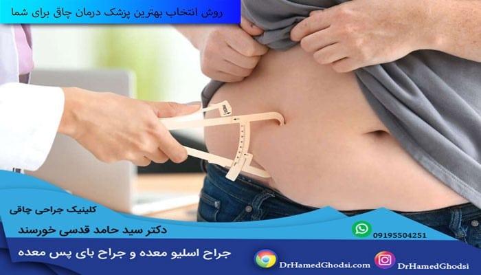 جراح چاقی خوب در تهران