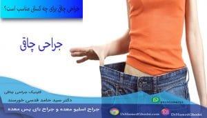 جراحی چاقی برای چه کسانی مناسب است