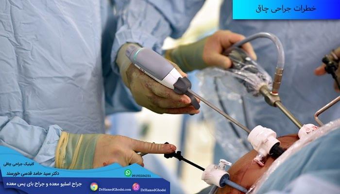 انجام عمل جراحی چاقی با روشی مناسب