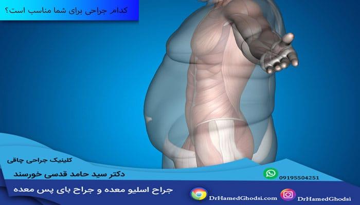 کدام جراحی برای شما مناسب است؟