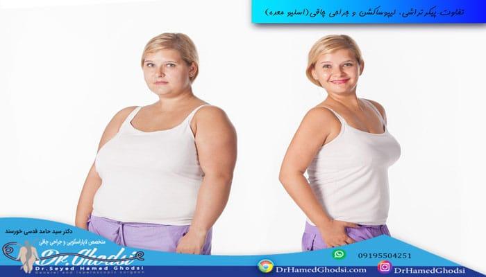 تفاوت پیکرتراشی و لیپوساکشن با جراحی چاقی(اسلیو معده)