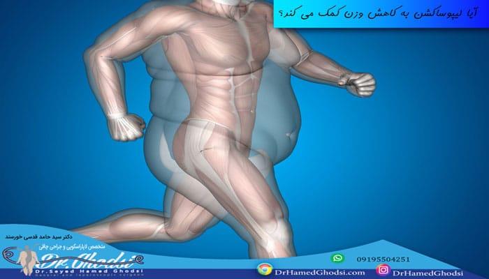 تفاوت پیکرتراشی، لیپوساکشن و جراحی چاقی(اسلیو معده)