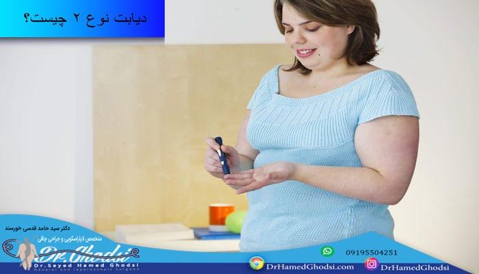 درمان دیابت نوع 2 با اسلیو معده