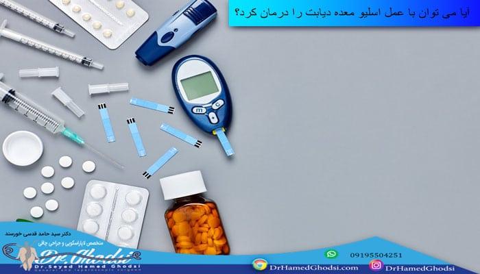درمان دیابت با اسلیو معده