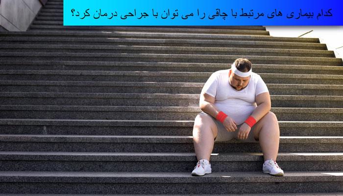 درمان چاقی با جراحی