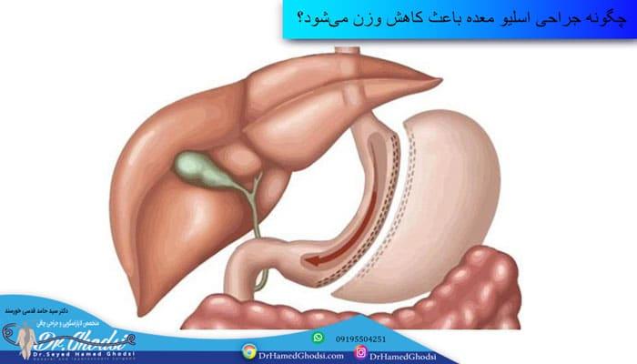 چگونه جراحی اسلیو معده باعث کاهش وزن میشود؟