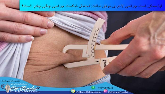 احتمال شکست جراحی چاقی چقدر است؟